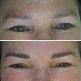 Diana - Feathered Eyebrow Tattooing